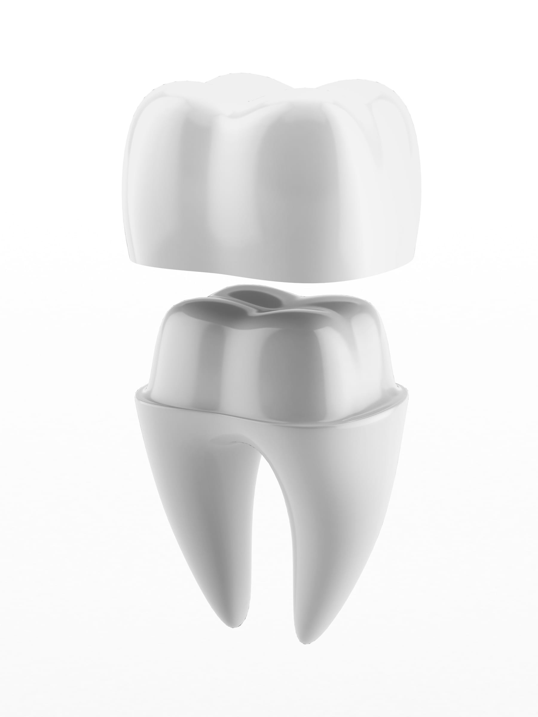 CEREC 3D - Technologies