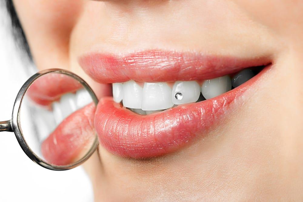 Esthétique - Bijou dentaire - Dentisterie esthétique