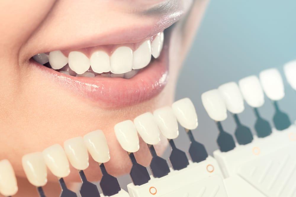 Esthétique - Blanchiment dentaire - Facette - Bijou dentaire - Dentisterie esthétique