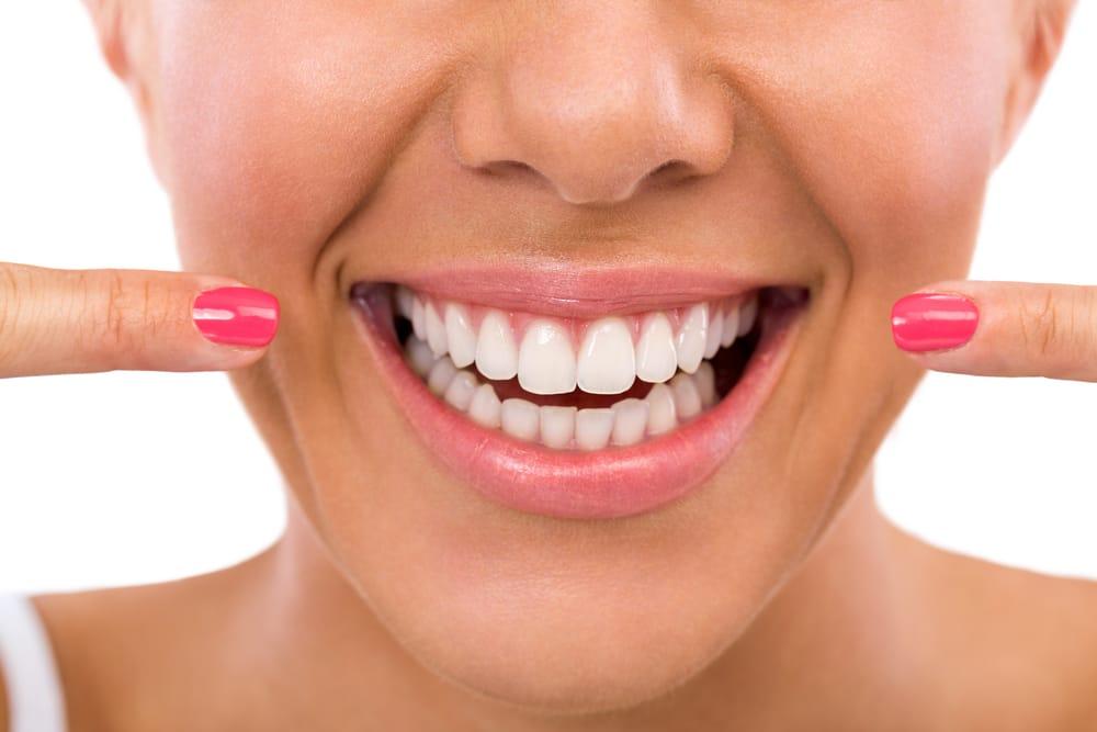 Esthétique - Blanchiment dentaire1 - Dentisterie esthétique