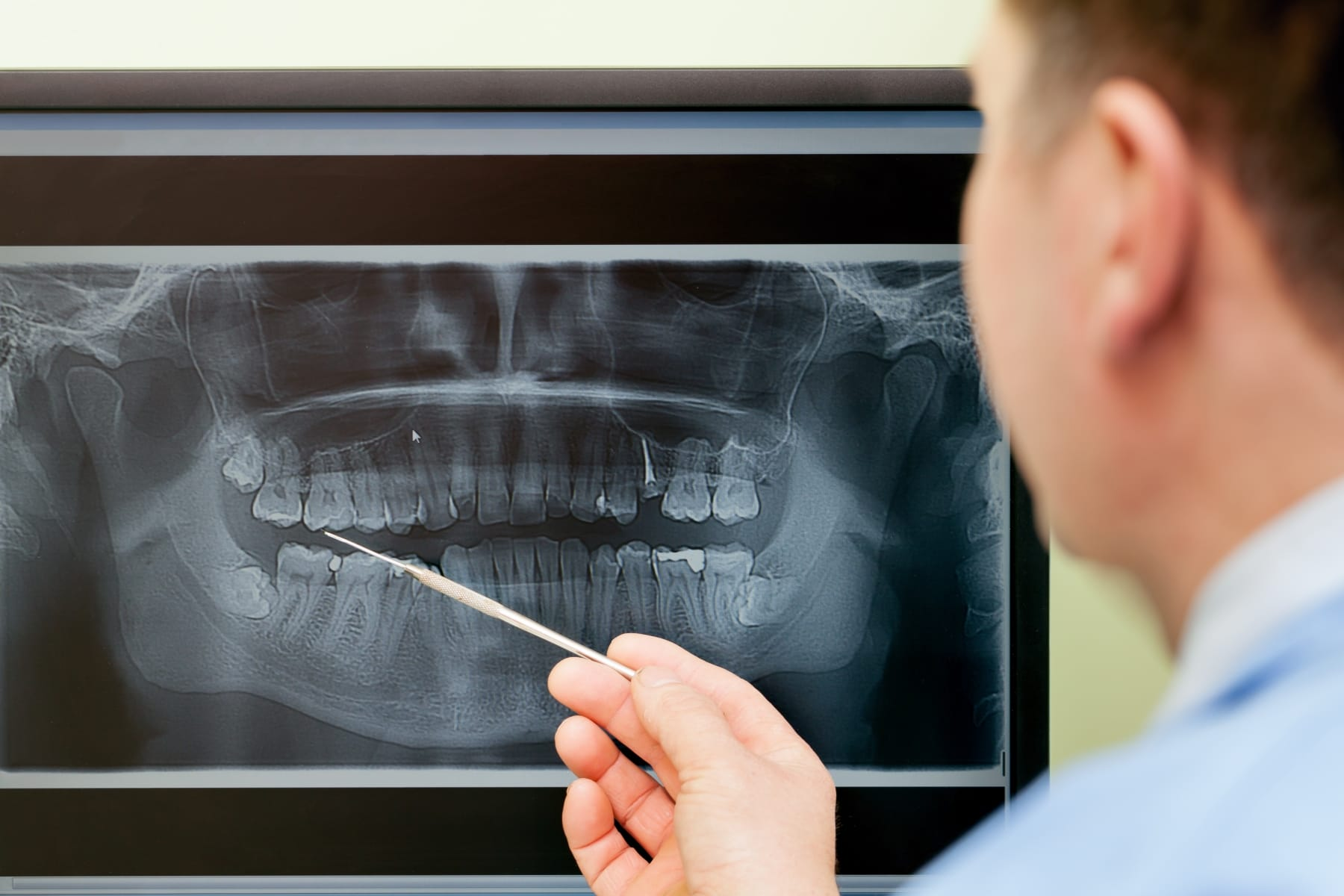 Extraction of wisdom teeth - Implantology and surgery - CDBPA