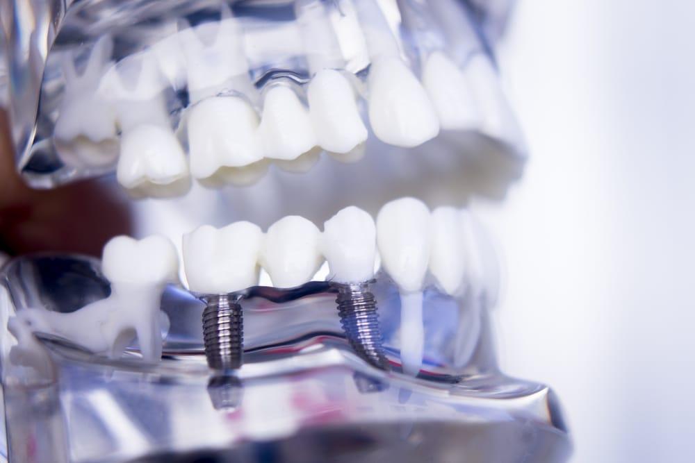 Implant - Implantologie et chirurgie