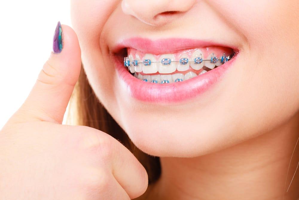 Orthodontie - Dentisterie esthétique