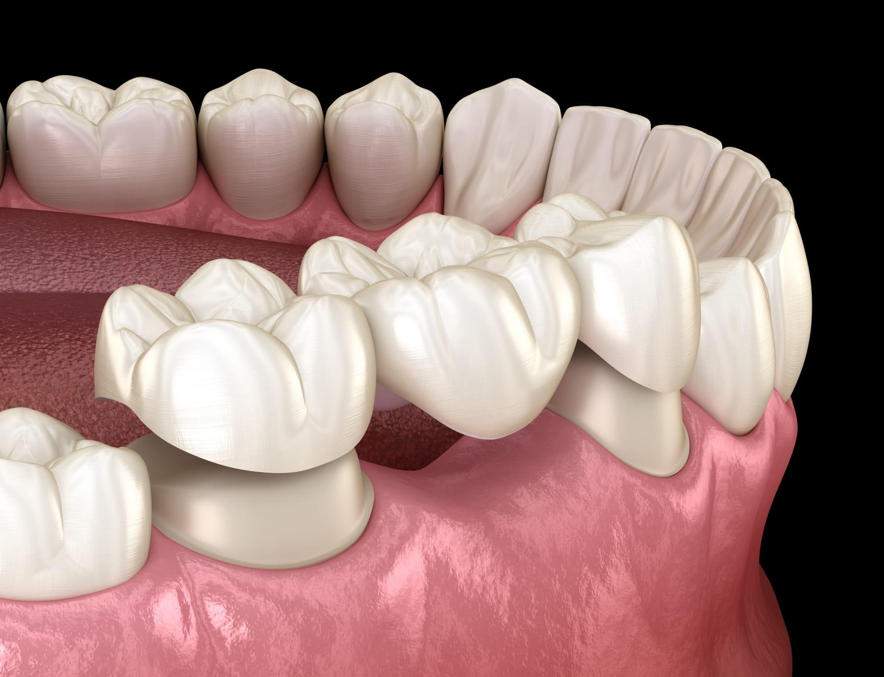 Pont fixe - Dentisterie Générale