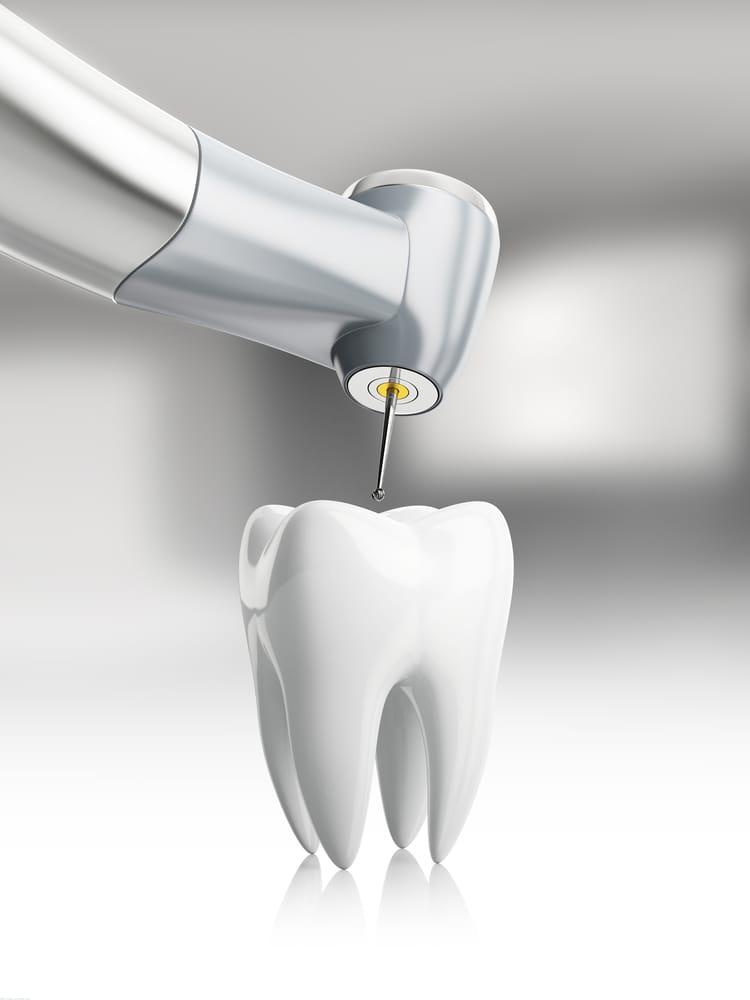 Traitement de canal - Dentisterie Générale