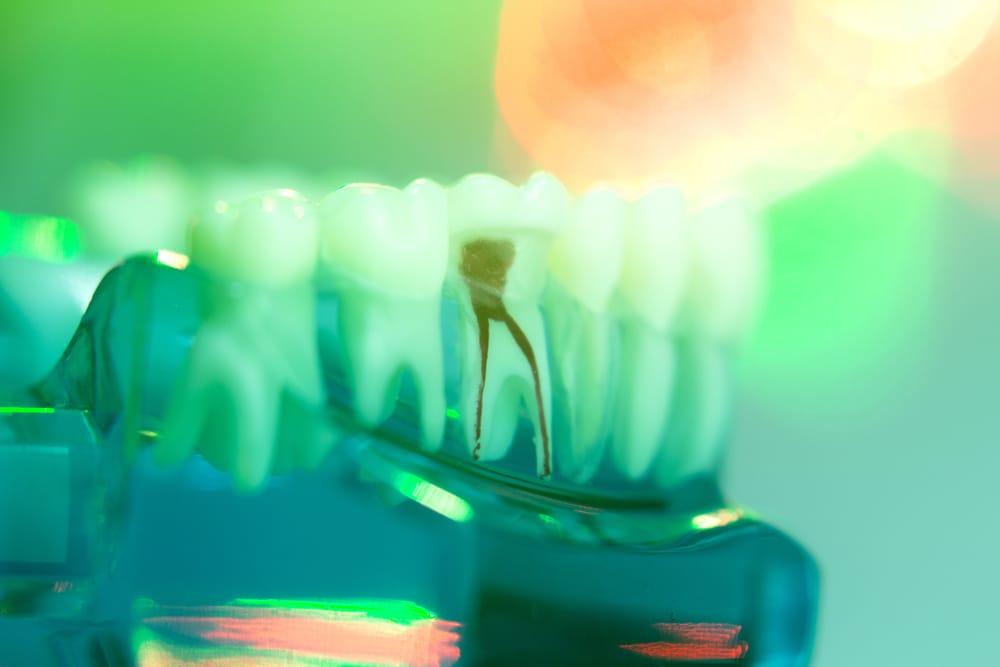 Traitement de canal - Racine - Dentisterie Générale