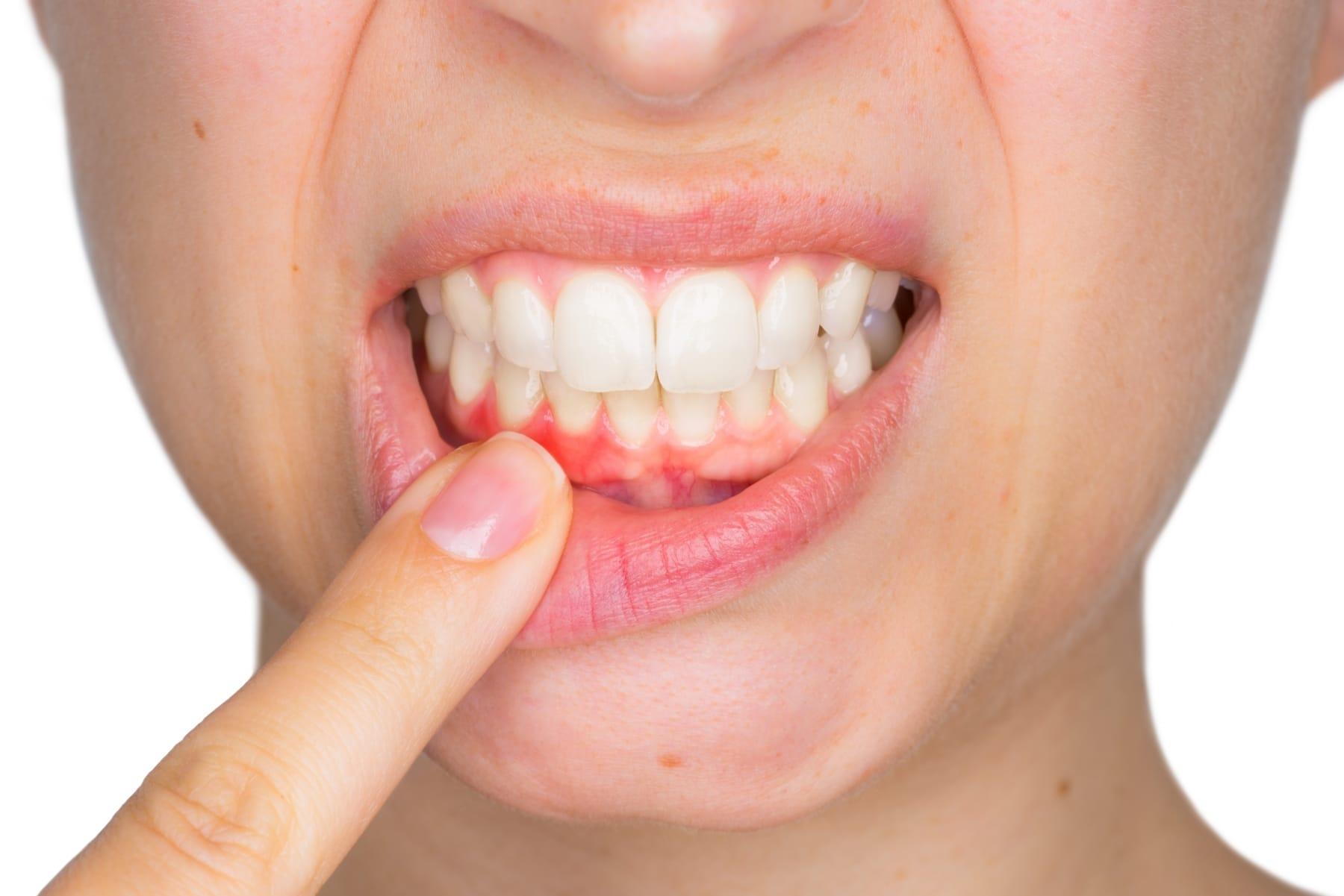 Traitement de gencive - Dentisterie Générale