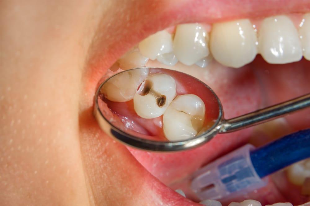 Restaurations - Carie dentaire - Dentisterie Générale